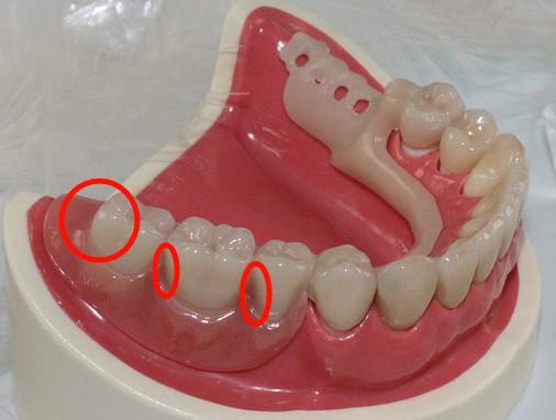 大人歯磨き