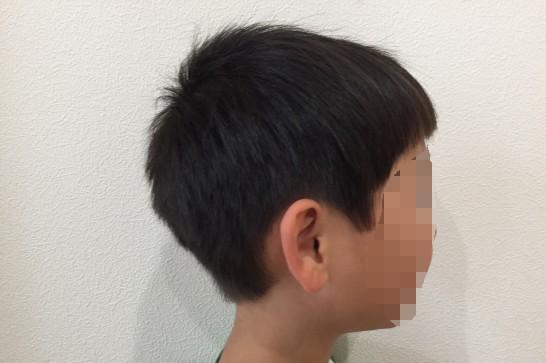 Panasonicのカットモードの使用例:使用後(耳周り)